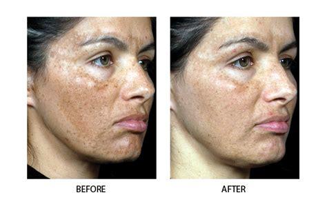 acne laser treatment picture 7