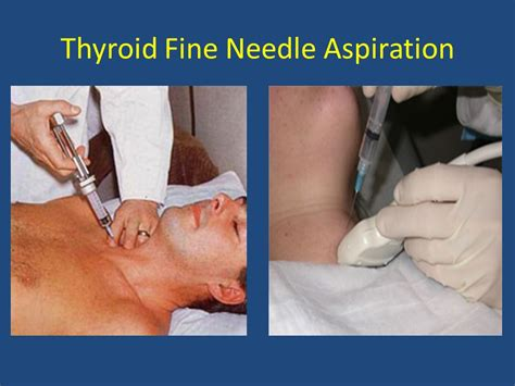 aspirator thyroid needle picture 3