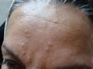 cure for red spots from acne picture 5
