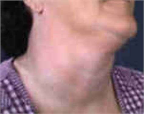 how do you treat greatly enlarged thyroid picture 4