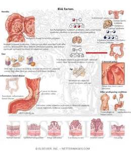 sympthoms of colon cancer picture 3