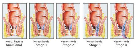 hemorrhoid treatment 2013 picture 2