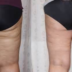 slender ray lipo treatment reviews picture 1