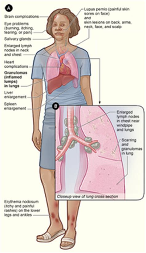 enlarged heart and hypothyroidism picture 5