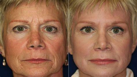 face cream anti wrinkles use by ellen degeneres picture 12