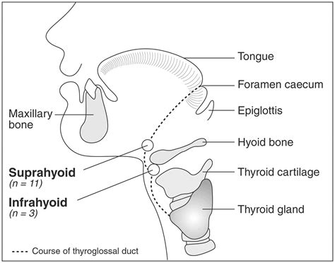 thyroid glossal duct cyst picture 1