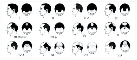 androgenetic alopecia and picture 7