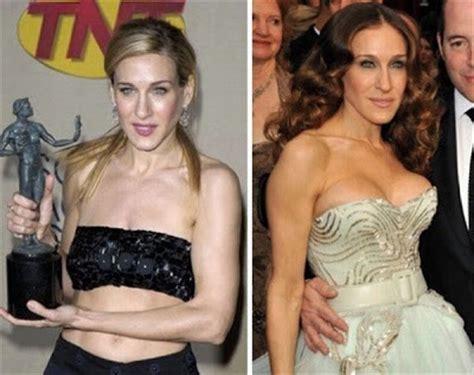 celebrity breast augmentation picture 7