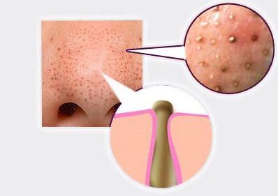 will vitamin e help acne picture 11