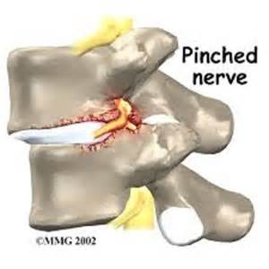herniated disc pain relief picture 5