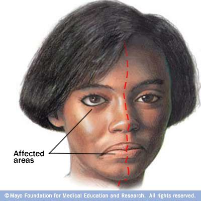 what is r herpes picture 9