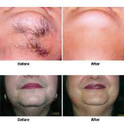 electrolysis hair removal for genitals picture 5