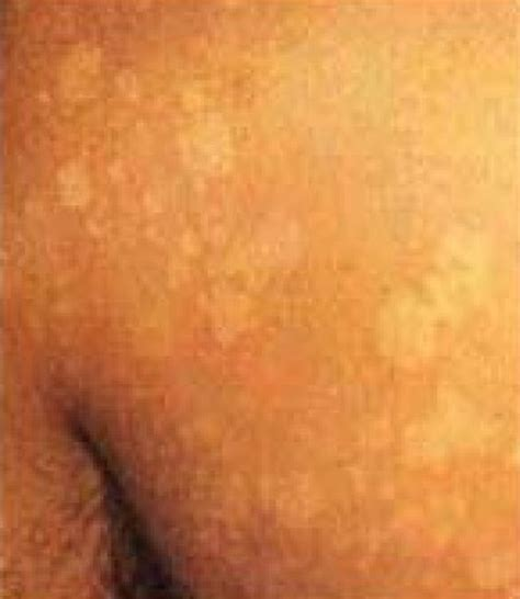 cause of white spots on skin picture 7