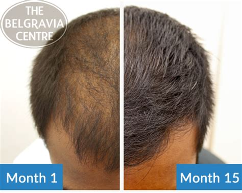male testosterone therapy and hair loss picture 13