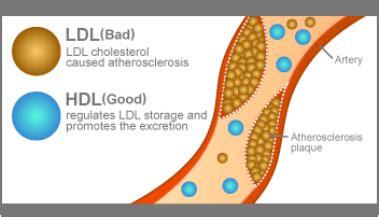 Does zetia lower ldl cholesterol levels picture 9