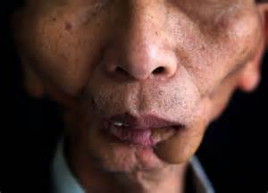 human papillomavirus oral cancer symptoms picture 3
