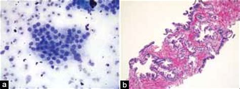 complications of a liver biopsy picture 17