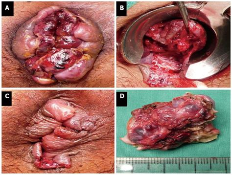 painless hemorrhoids picture 9