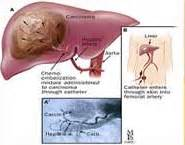 el cancer symptoms picture 18