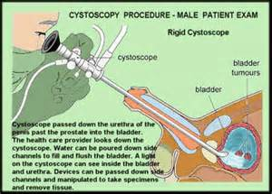 How long to wait for surgery after prostate picture 15