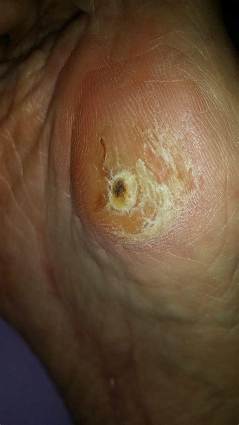 foot laser fungus denver picture 11