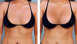 breast augmentation results picture 1