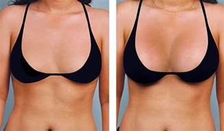 breast augmentation before and after picture 1