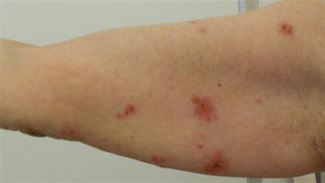 Get rid of hives picture 4
