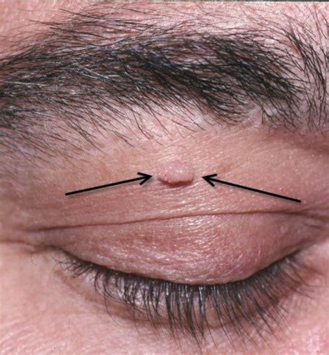 hair on face genital disturbances for urdu picture 10