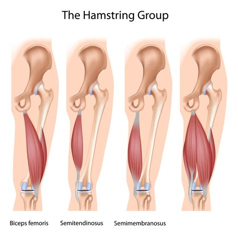hamstring muscle injuries picture 1