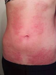skin rashes on stomache picture 2