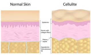 what is cellulite picture 3