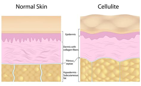 what causes cellulite picture 3