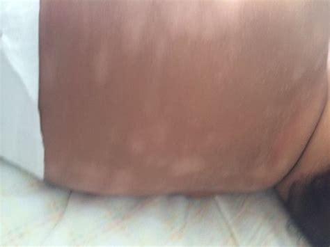 infant h white spots picture 3