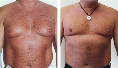 male breast enlargement picture 6