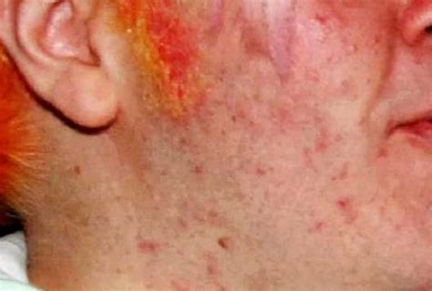 acne scars pock marks picture 10