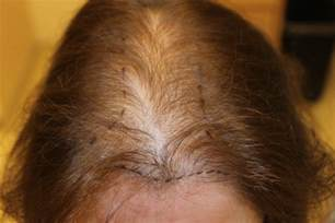 alapica female hair loss picture 6