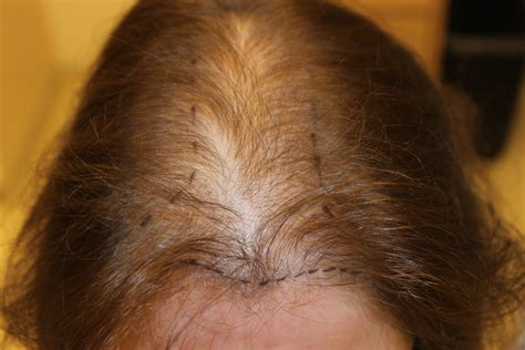 alopecia hair loss picture 18