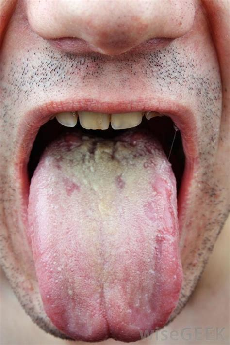 clotrimazole for lip fungus picture 5