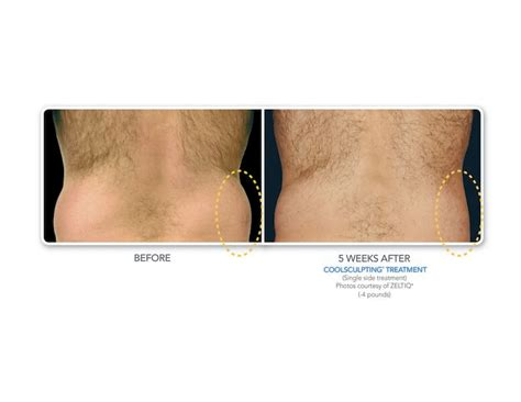 cary laser hair removal picture 7
