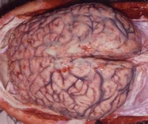bacterial meningitis left hole on left side of brain picture 10