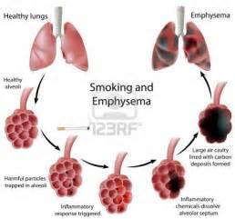 inflammatory el disease statistics picture 15
