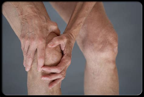 knee swelling joint pain stiffness picture 9