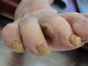 deformities caused my herpes picture 10