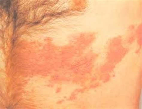 herpes rash picture 2