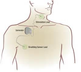 clinical trials sleep apnea remeron picture 17
