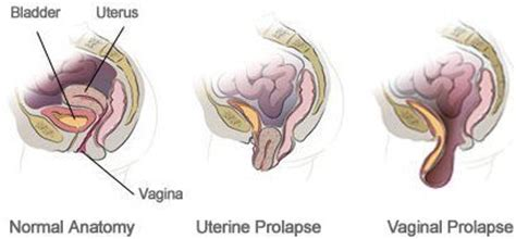 cause of dropping bladder picture 9