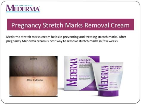 stretch marks removal scars picture 5