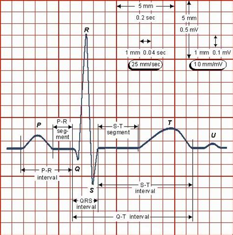 can herbal vitamins give you an abnormal ekg picture 10