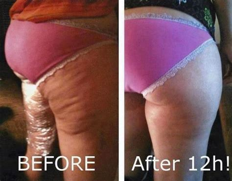what works best for cellulite picture 10